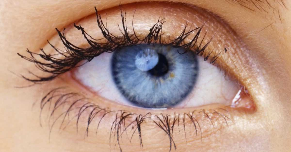 Mikä on laiskan silmän syndrooma (lazy eye)?